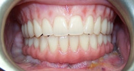 A perfect fit (full arch implant-supported prosthesis)