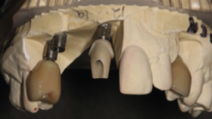 Custom abutment cemented to Axiom BL 5 GH1.5 Flexi-base.