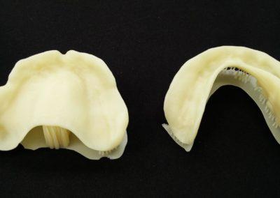 CDL Dentures study 2