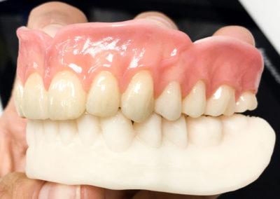 CDL Dentures study (20 of 23)