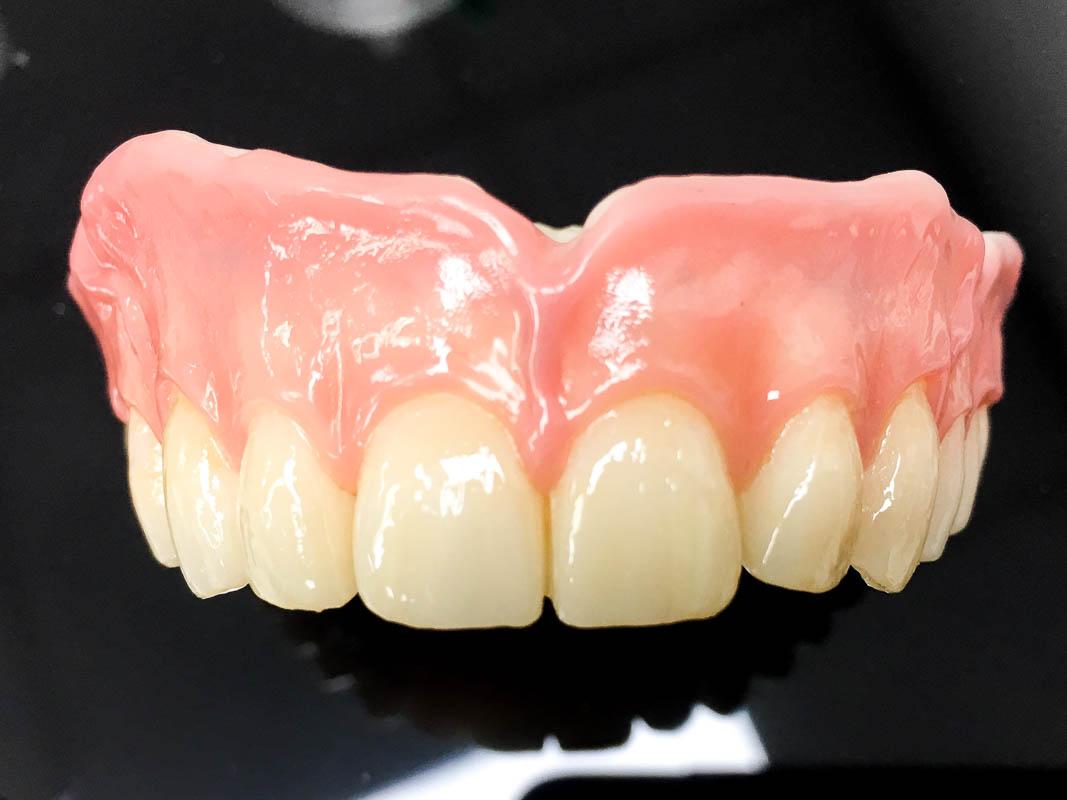 CDL Dentures study 21
