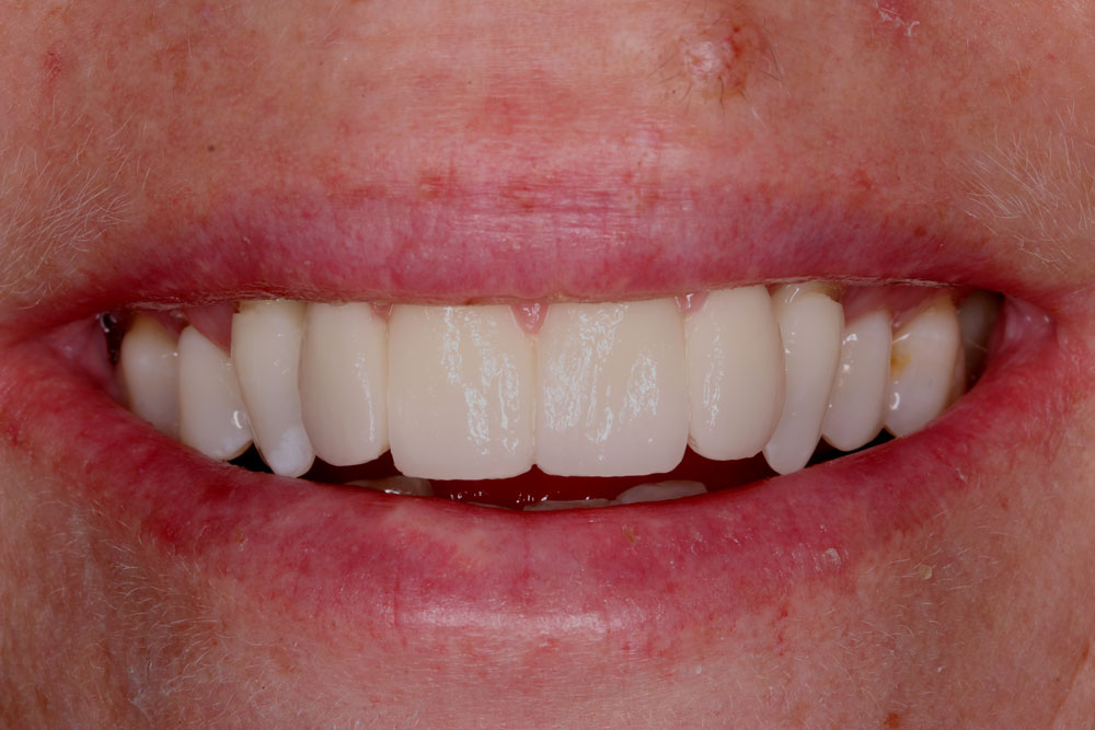 11.natural-smile-for-tooth-shapes
