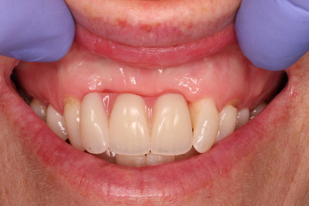 6.second-temp-denture