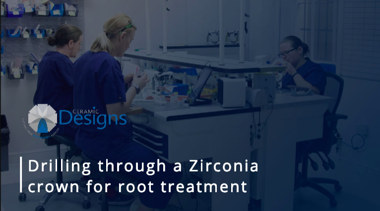 Drilling through a Zirconia crown for root treatment