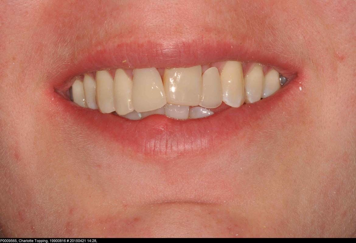 2.temp denture while treatment decided