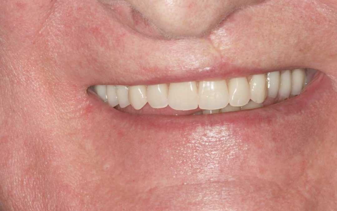 Restoring a patients palate and smile