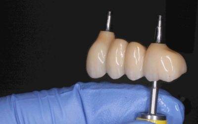 UL3-6 screw-retained implant bridge with UR4 and UR6 single screw retained crowns