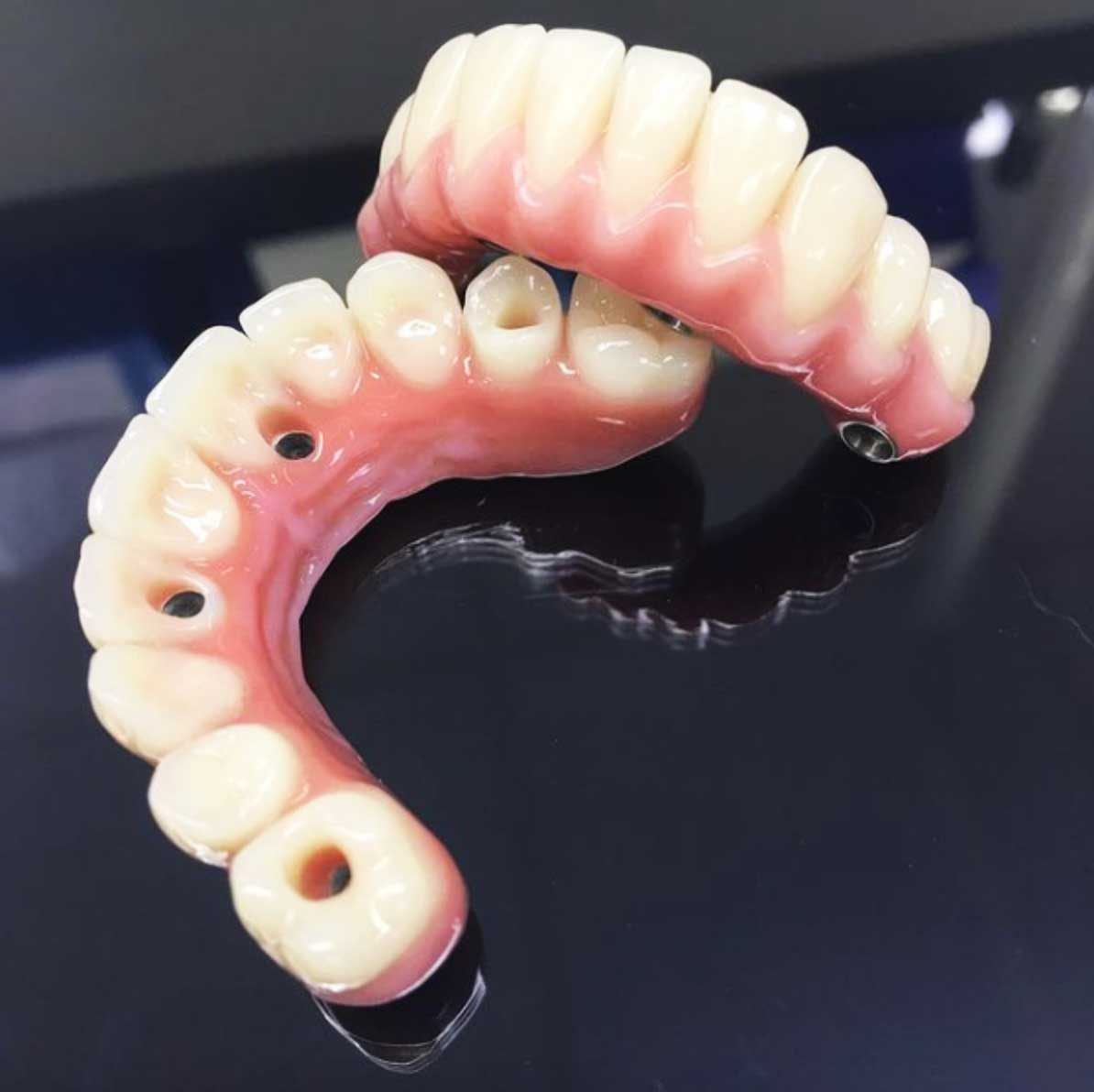 Acrylic-and-composite-hybrid-wrap-with-Phonares-II-acrylic-teeth-and-custom-milled-titanium-substructure.