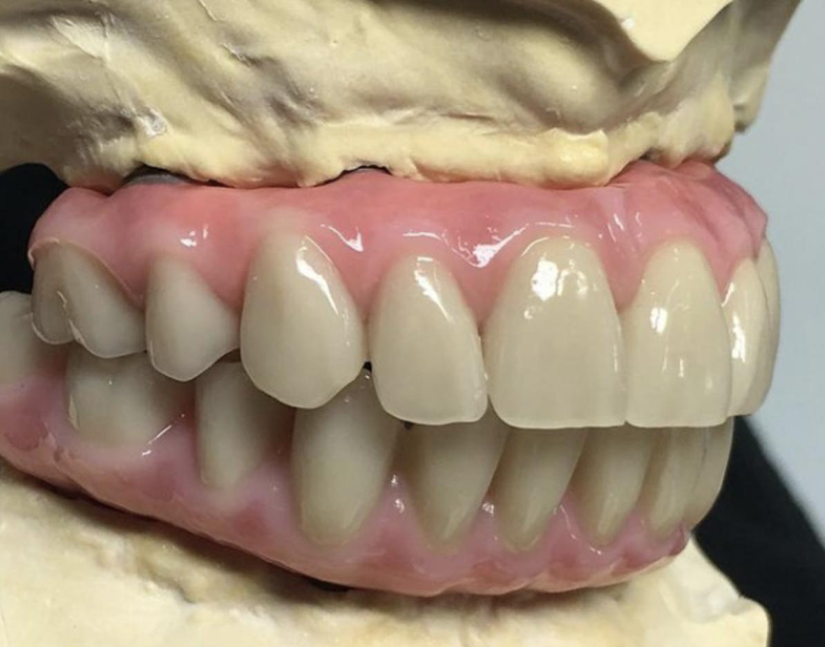 Acrylic hybrid wrap with Phonares II acrylic teeth and custom milled titanium substructure.