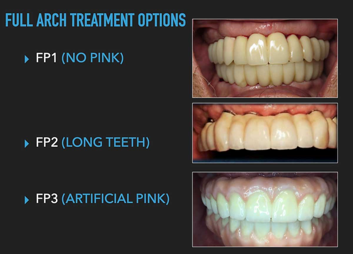 photo-source-full-arch-treatment-options