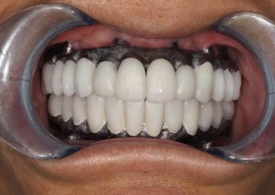 """Try in phase checking occlusal bite and fit of crowns (no """"and"""" at the end)"""