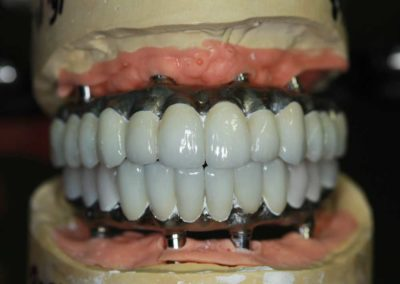 Zirconia crowns stained, glazed and cemented, ready for the composite work to be done on it